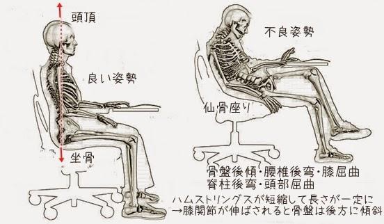 仙骨座りの画像